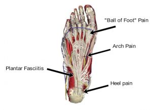 Foot Pain - North Oakland Chiropractic Clinic